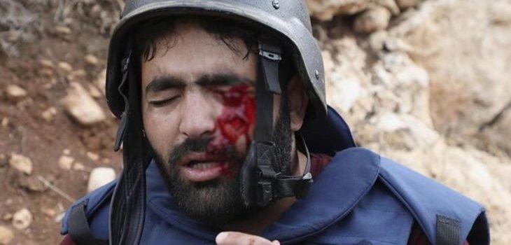 حملات تضامن واسعة مع صحافي فلسطيني بعد أن فقد عينه برصاصة إسرائيلية